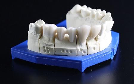 L'implantologia dentale è una branca fondamentale dell'odontoiatria nella quale risulta fondamentale la collaborazione con uno studio odontotecnico valido.